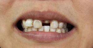 les sans dents